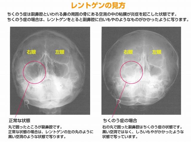 引用元:http://fukubikuuen.org/sub02.html